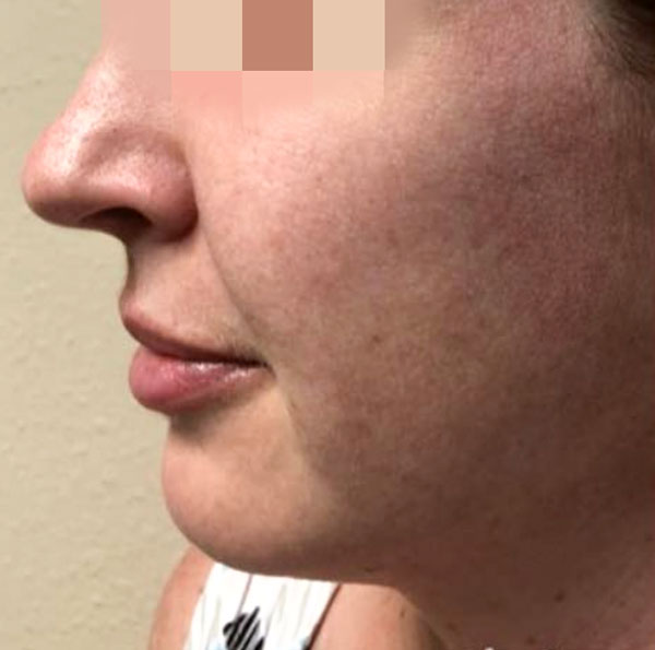 After 1 IPL Photofacial Treatment By   Heather Scull