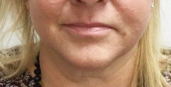 After Kybella (Jowls) By   Maria Mosos