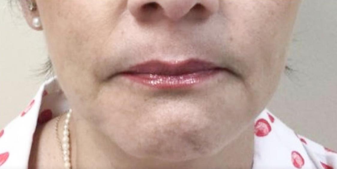 Before Restylane Refyne & Defyne (Lips & Lines) By       Maria Mosos