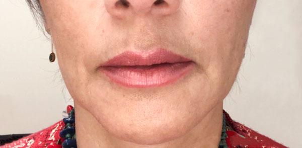 After Restylane Refyne & Defyne (Lips & Lines) By       Maria Mosos