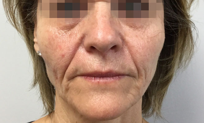 After Sculptra (1 Treatment) By   Katie Rehberg