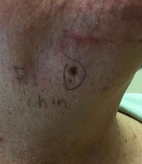 Melanoma pictures, melanoma mole, what does melanoma look like, melanoma skin cancer