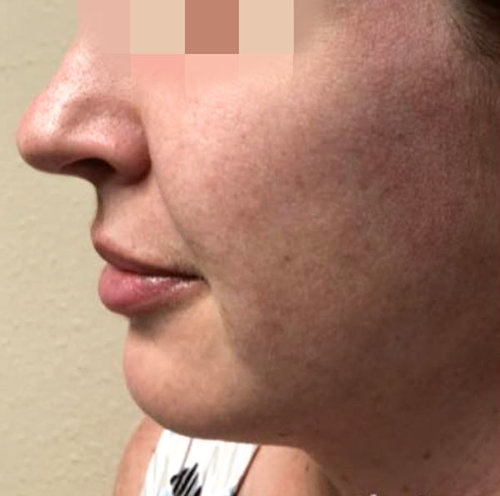 IPL Photofacials In Tampa — Academic Alliance In Dermatology