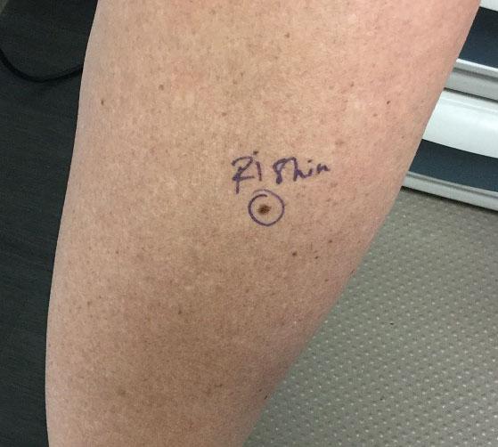 what is melanoma, melanoma mole, melanoma treatment, what does melanoma look like