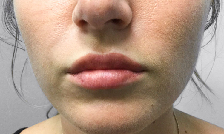After Volbella (Lips) + Restylane Refyne (Lines) By   Katie Rehberg