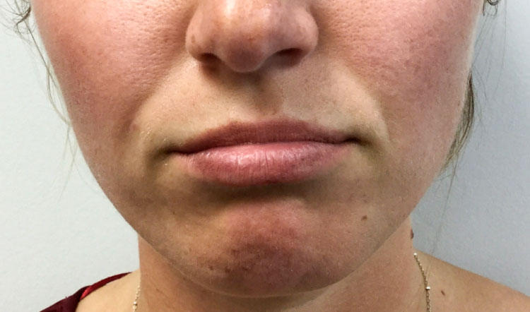 Restylane Before & After — Academic Alliance In Dermatology