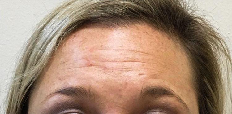 Before Botox By   Maria Mosos