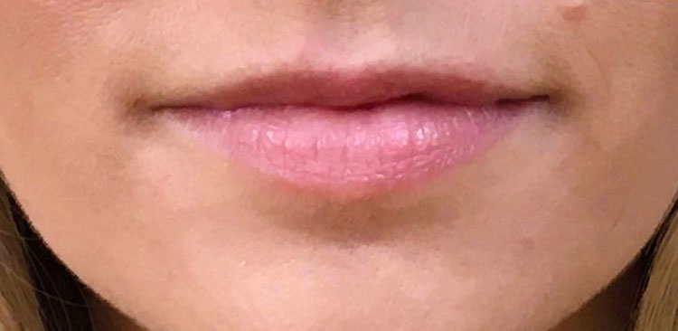 After Juvederm (Lips & Nasolabial) By   Maria Mosos