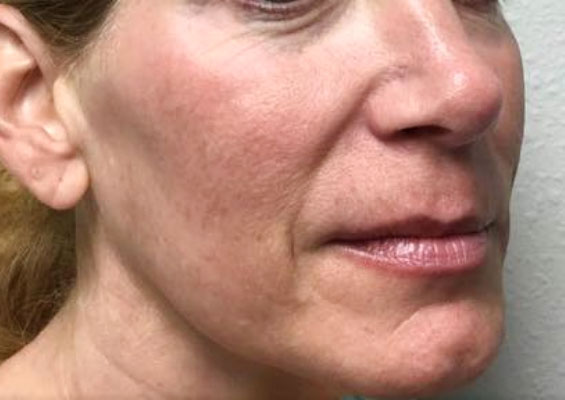 Before Restylane, Juvederm, Voluma, Volbella By   Heather Scull