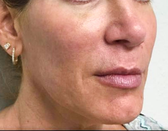 After Juvederm, Voluma, Volbella, Restylane By   Heather Scull
