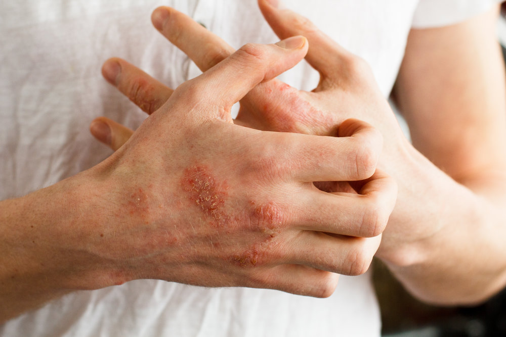 Atopic Dermatitis: Causes, Symptoms & Treatment Options — Academic Alliance In Dermatology