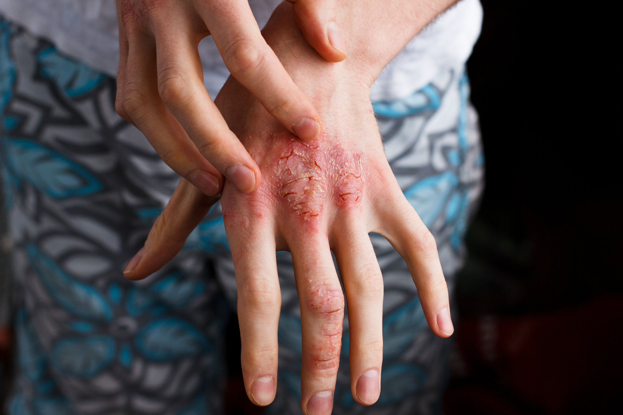psoriasis, psoriasis awareness month, what is psoriasis, what causes psoriasis, psoriasis symptoms, symptoms of psoriasis, treating psoriasis, psoriasis treatment, what causes psoriasis, types of psoriasis, psoriasis doctor, dermatologist, tampa dermatologist, tampa dermatology, dermatologist in tampa