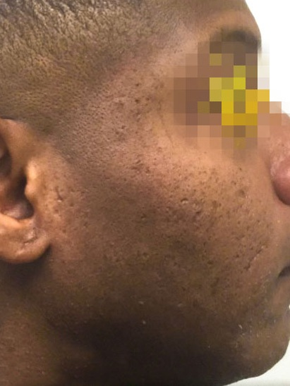 Microneedling & Halo After
