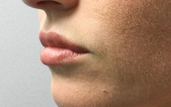 After Restylane Refyne (Lines) + Volbella (Lips) By   Katie Rehberg