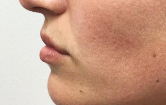 Before Restylane Refyne (Lines) + Volbella (Lips) By   Katie Rehberg