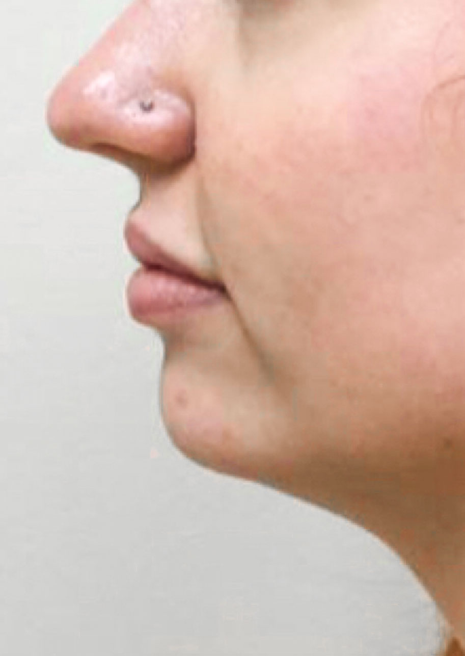 Before Restylane Lyft (Chin) By       Maria Mosos