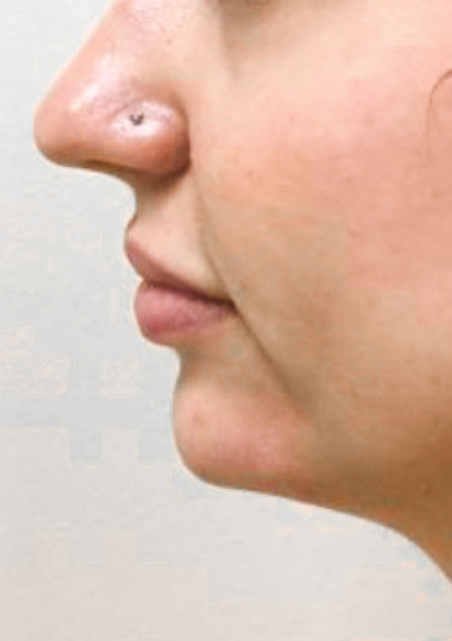 After Restylane Lyft (Chin) By       Maria Mosos