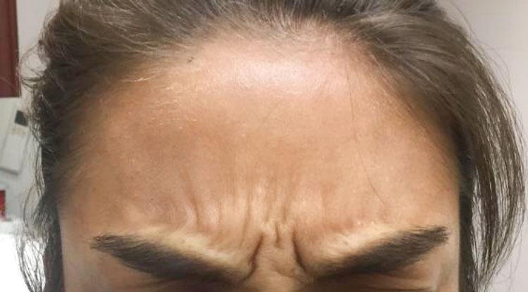 Before Botox By   Ann Tran