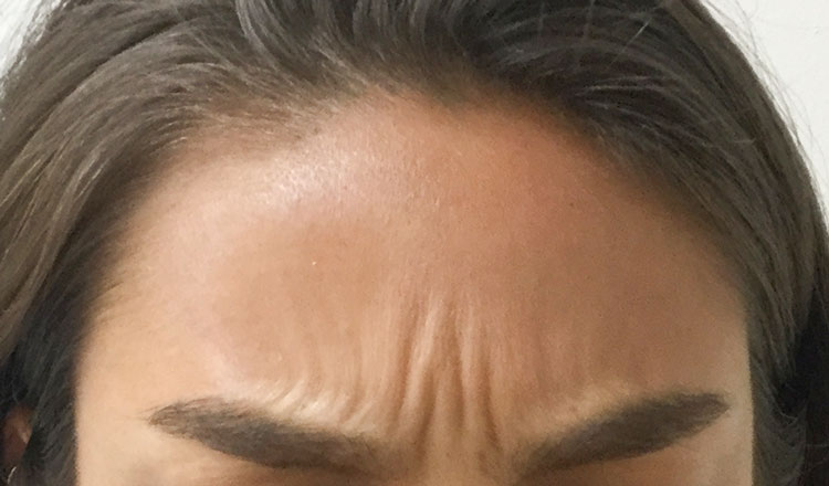 After Botox By   Ann Tran