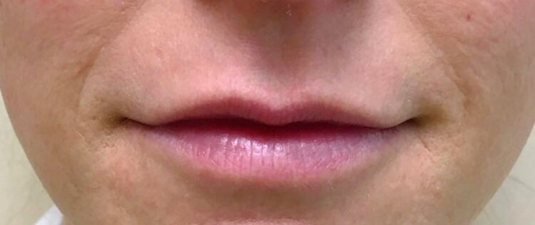 Before Juvederm Ultra (Lips & Nasolabial) By   Maria Mosos