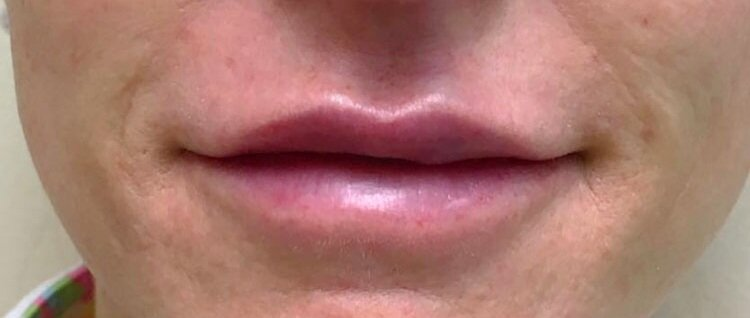 After Juvederm Ultra (Lips & Nasolabial) By   Maria Mosos