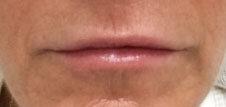 After Juvederm (Lips) By   Ann Tran