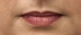 Before Juvederm (Lips) By   Ann Tran