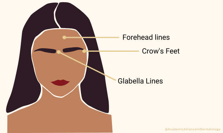The most common treatment areas for Botox & Dysport are Forehead lines, Crow's Feet, and Glabella lines