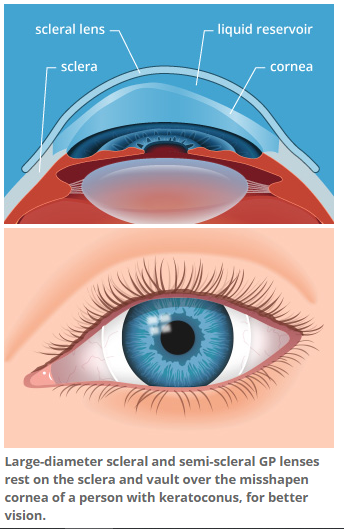 Scleral.PNG