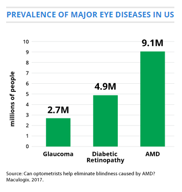 AMD is most common among the older white population - Among Americans age 50 and older, advanced macular degeneration affects 2.1 percent of this group overall, with whites being affected more frequently than blacks, non-white Hispanics and other ethnic groups (2.5 percent vs. 0.9 percent).