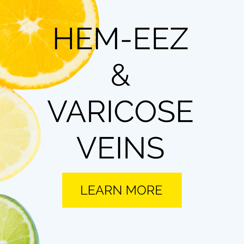 Hemeez and Varicose Veins