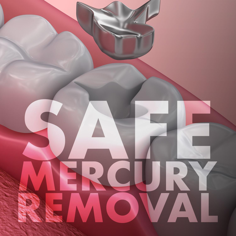 mercury-removal.jpg
