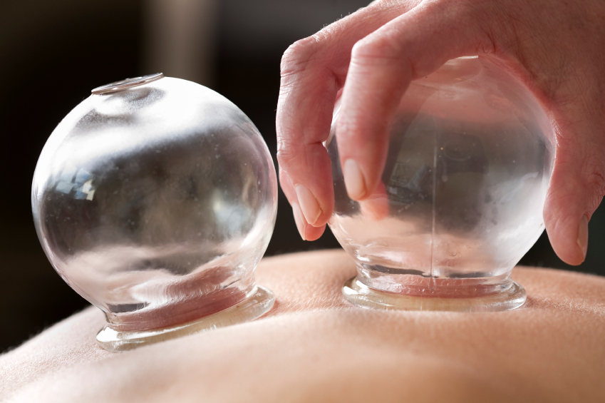 Cupping - Relaxing, calming and a great tension release. Cupping is the application of glass cups on the skin. Suction is created by burning a cotton ball inside the cups. Cupping can feel like deep massage, and is used to; increase Qi and Blood flow, open pores in the skin, move stagnation (think of tight muscles and knots), as well as to balance and realign the flow of Qi. Cupping may leave bruising on the skin that can last a week or more. The cups can be left in one spot on the body, or with a little oil on the skin they can be moved around.