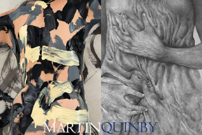Martin-Quinby 2-person.jpg