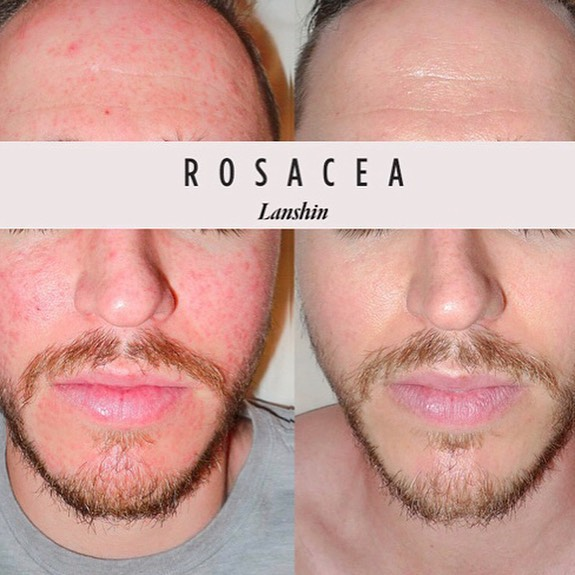 ROSACEA is a skin disorder that mostly affects the nose and cheeks (sometimes forehead and chin). It's characterized by redness, telangiectasia (spider veins), and sometimes papules or pustules (mistaken for pimples). It's important not to treat or misdiagnose rosacea as acne, perioral dermatitis, seborrhea dermatitis, or lupus. ★ Swipe to find out how I successfully treat rosacea using Traditional Chinese Medicine (TCM). *Image used with patient's permission.  #rosacea #skinhealth #tcm #Lanshin