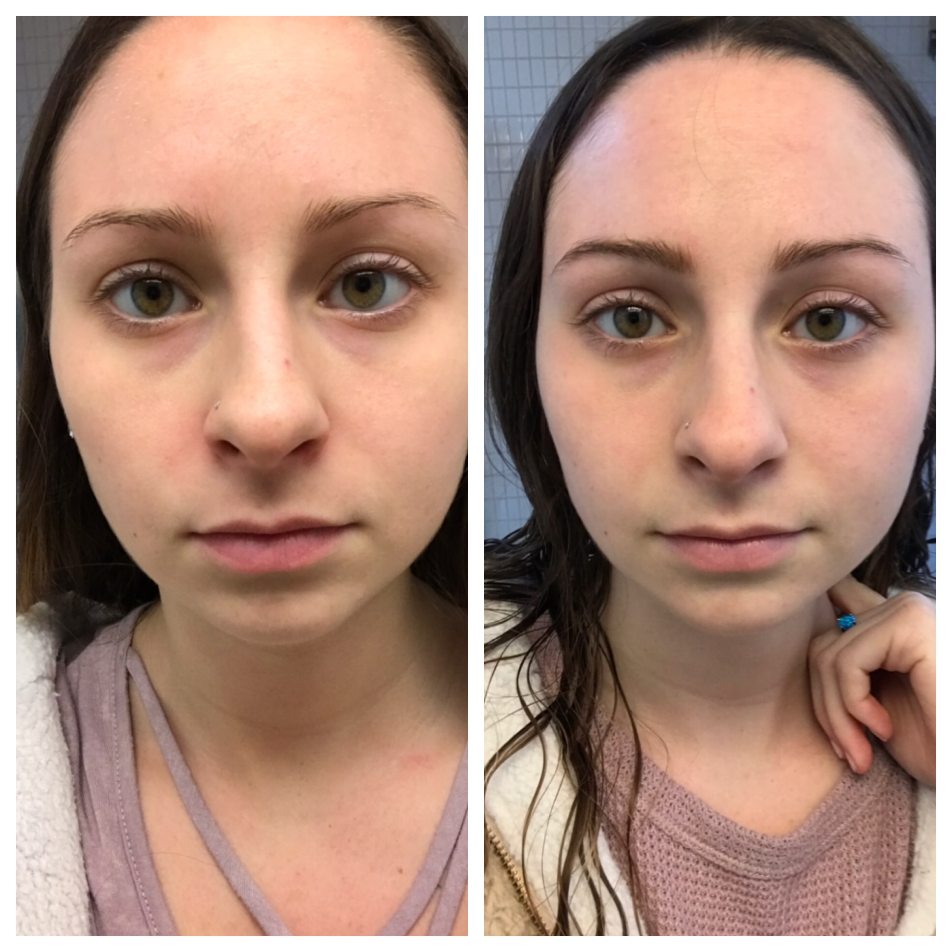 Before and After. You can see the redness around my nose is gone.