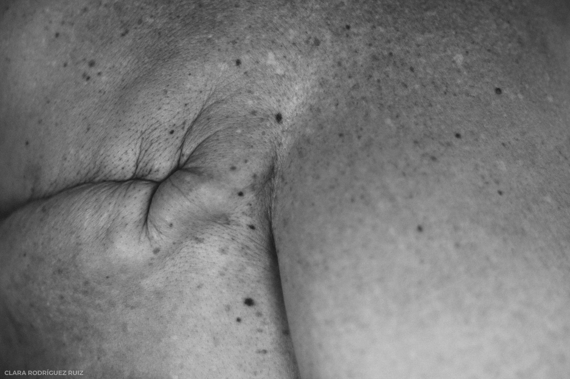 Re-Conocerse: El después del cáncer de mama