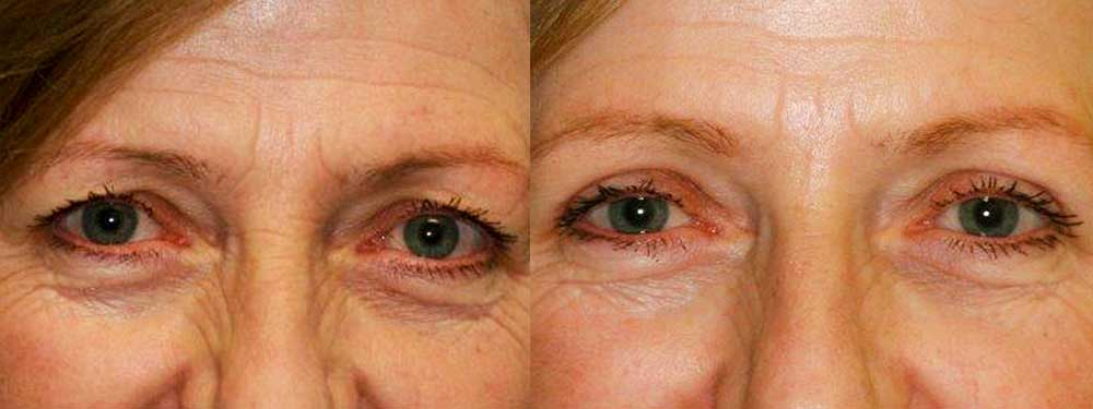 Eyelid Reduction - Before and After