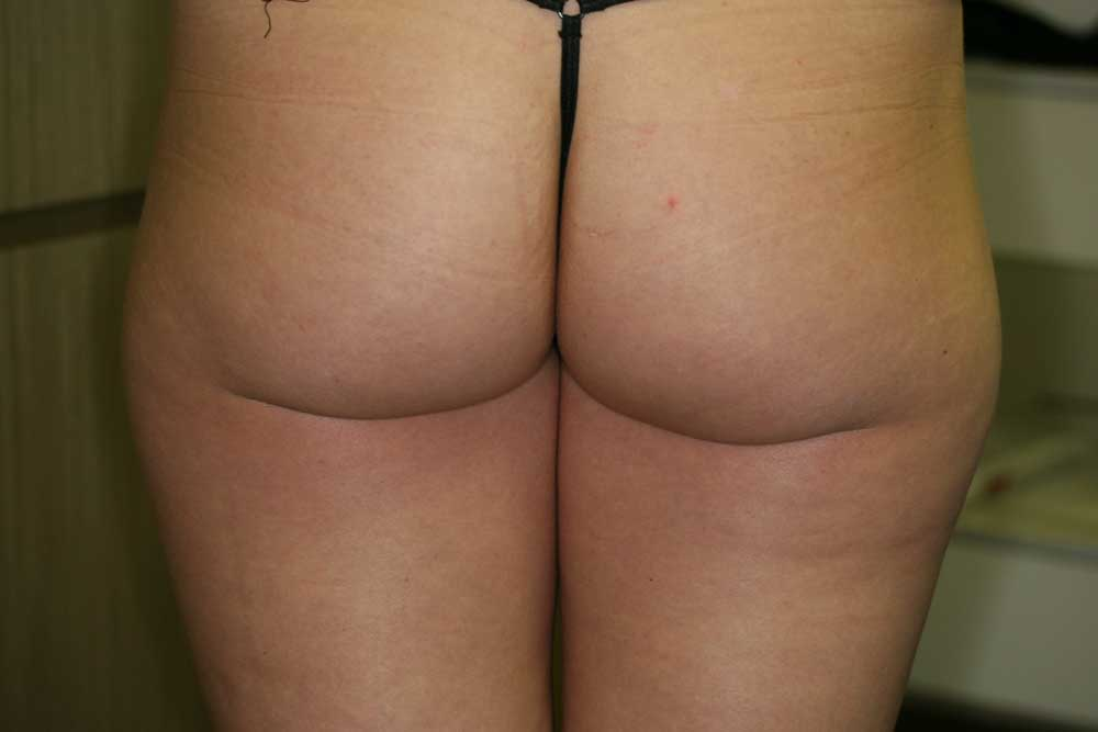 Liposculpture - Before
