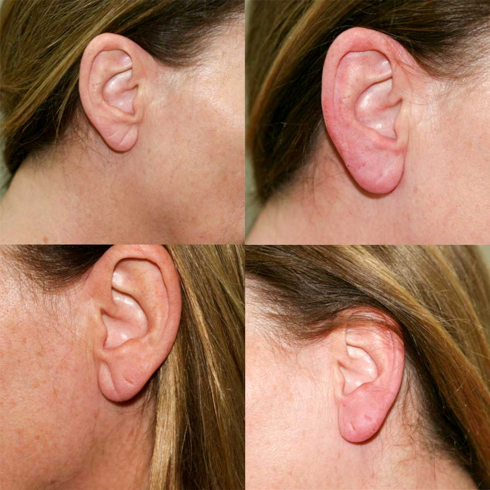 Before and After Earlobe Surgery