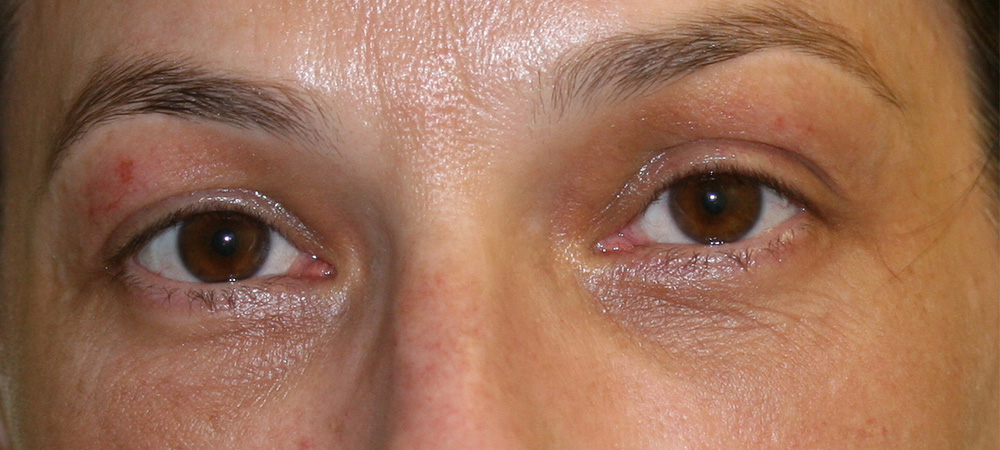 Eyelid Reduction - After