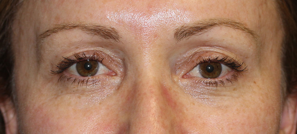 Eyelid Reduction - Before