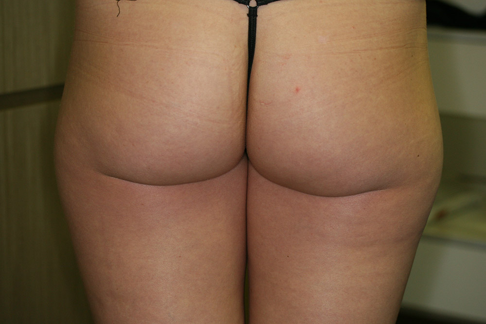 Cellulite Reduction - Before
