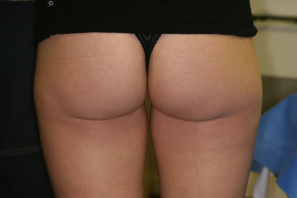 Cellulite Reduction - After