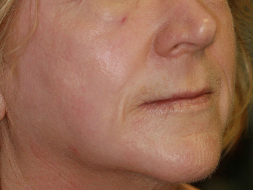 Collagen Induction Therapy - After