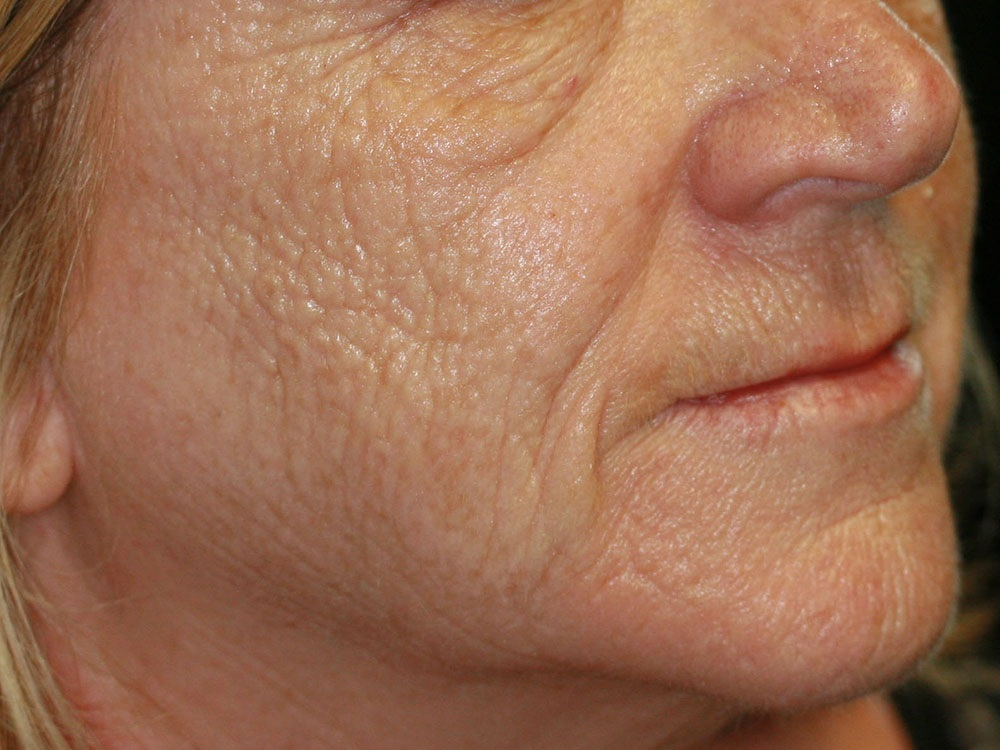 Collagen Induction Therapy - Before