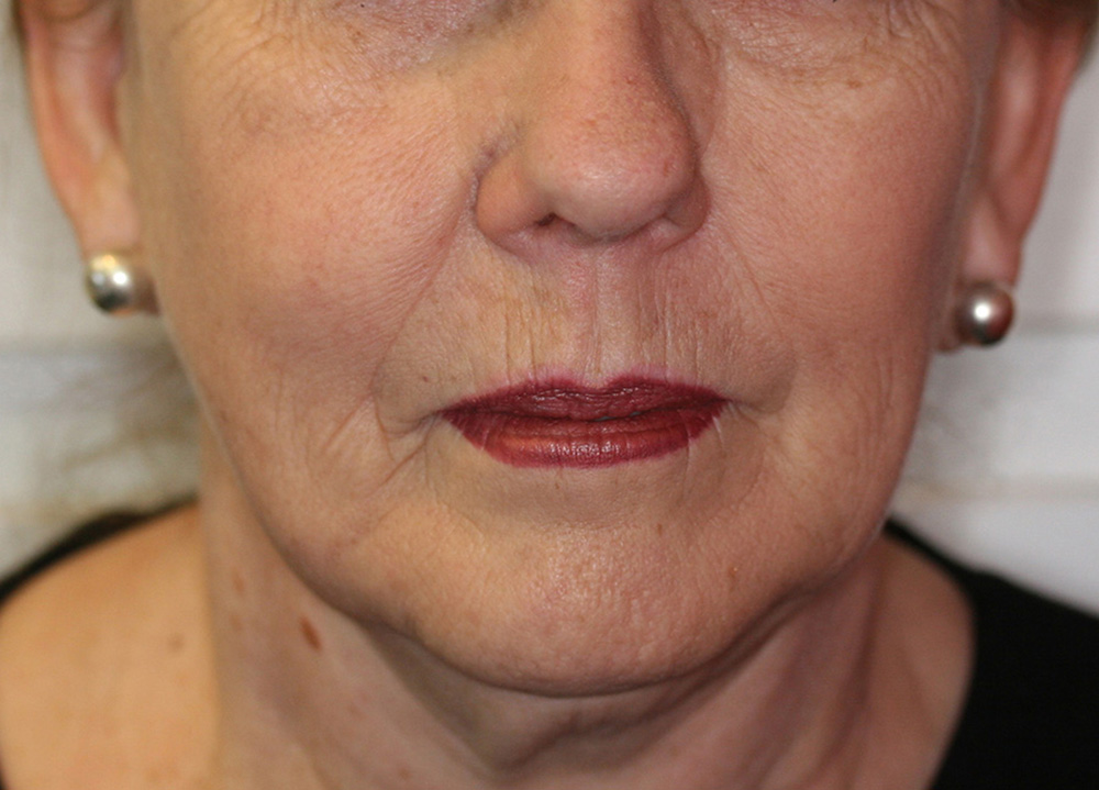 Face Thread Lifting - Before