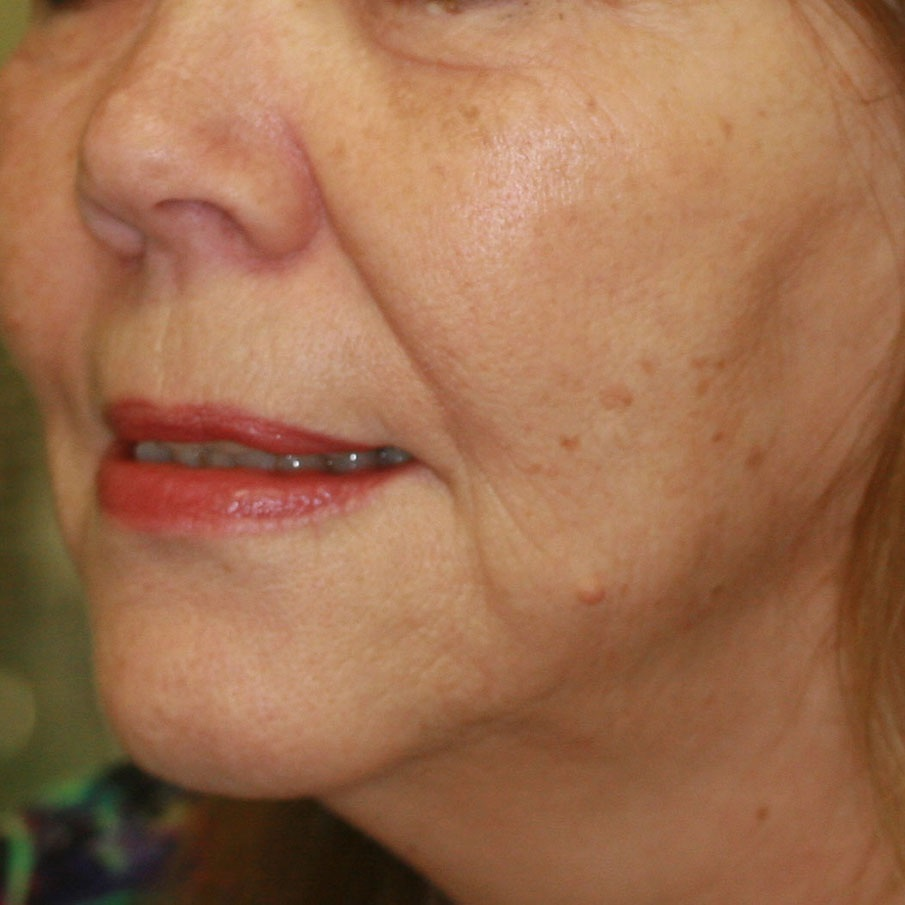 Face Thread Lifting - After