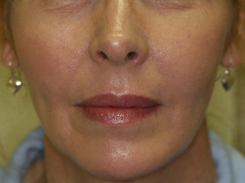Laser Therapies - After