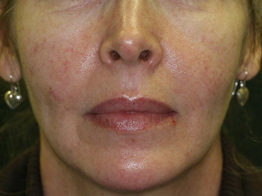 Laser Therapies - Before